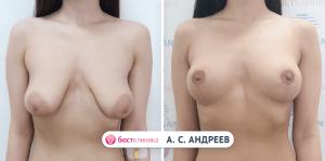 Подтяжка груди, выполненная Андреевым А.С.
