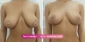 Подтяжка груди, выполненная Чайковским О.Л.
