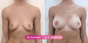 Коррекция груди, выполненная Андреевым А.С.
