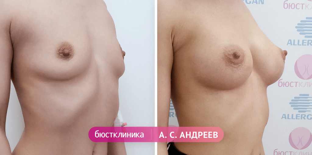 Увеличение груди: фото до и после операции