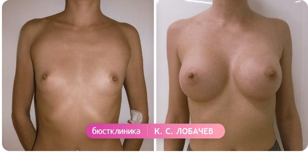 Пластика груди – результат операции
