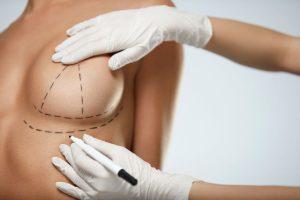 Реконструкция груди
