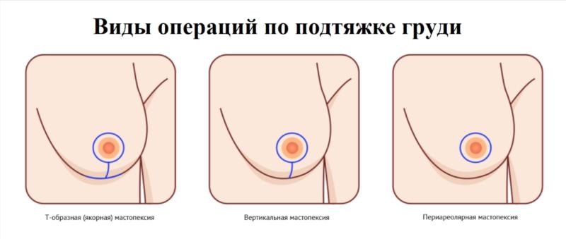 Виды операций по подтяжке груди